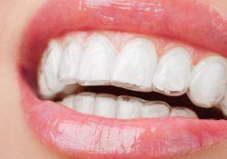 Få rettet de skæve tænder med Invisalign